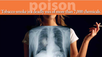 Lung Cancer. Tobacco Card by Centers for Disease Control and Prevention, United States.